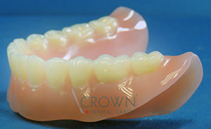 Crown Dental Labor